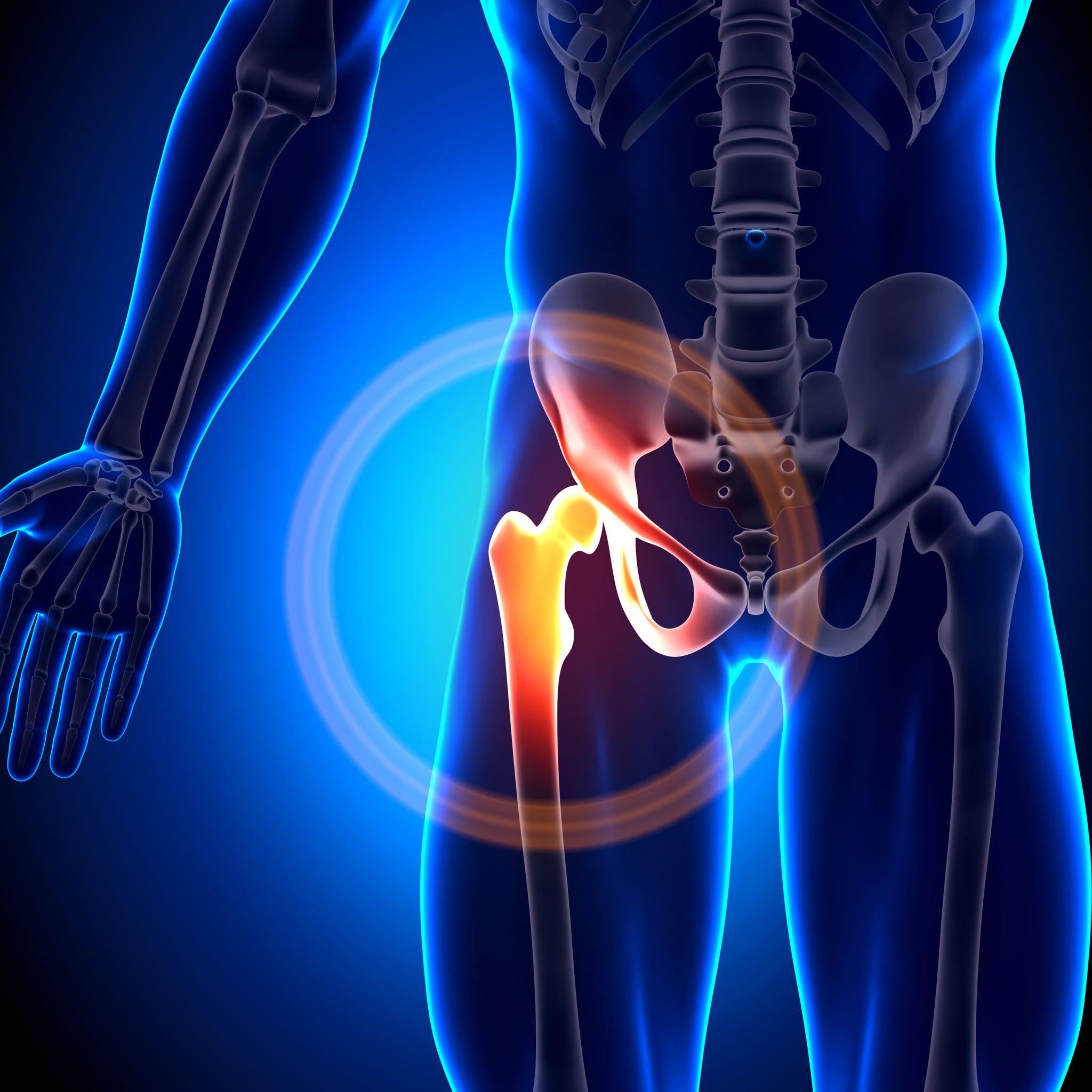 inhüvely bemetszés műtét csinálni ha a csípőízület fáj